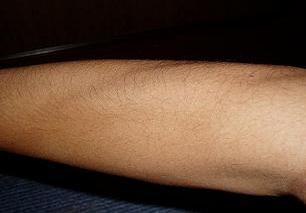 薄く なる 体毛